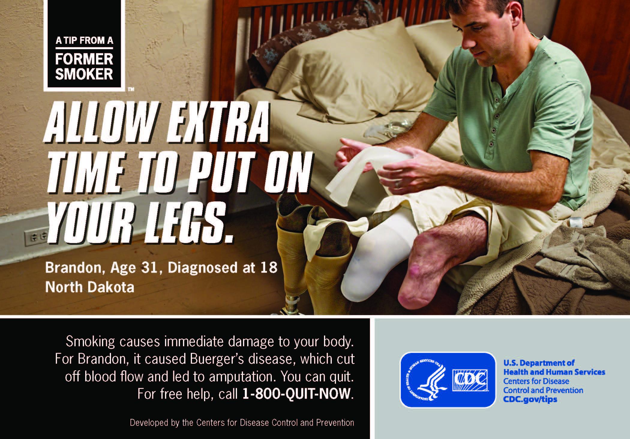 Image result for brandon's tip CDC